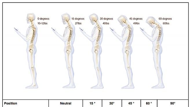 Smartphone-Nacken: Studie warnt vor Technik-Haltungsschäden ...